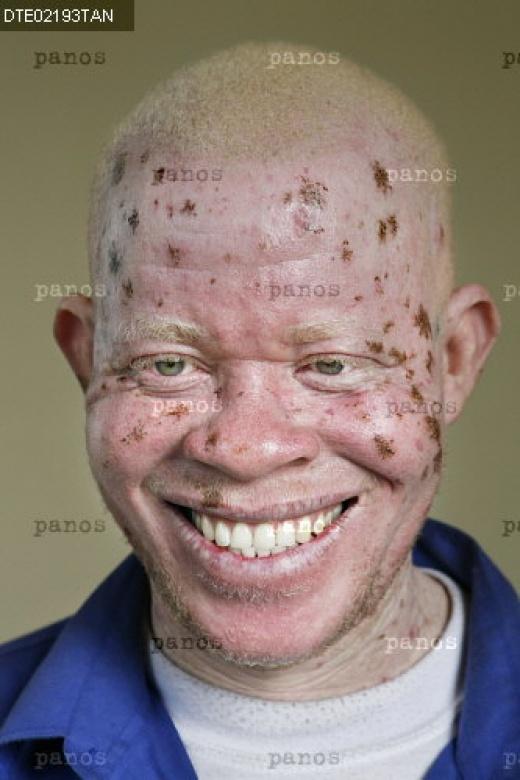 albino människa röda ögon