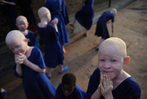Альбиносы в Африке